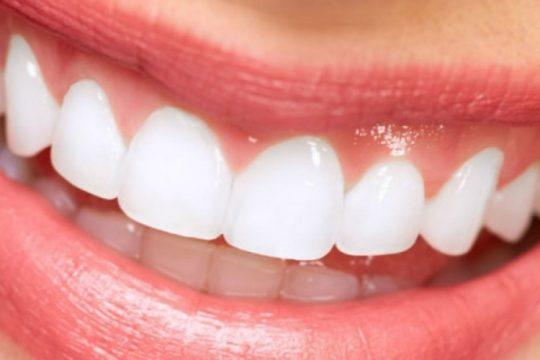 Tanden Bleken Valkenswaard